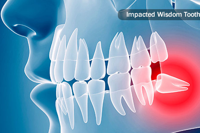 broken-wisdom-tooth