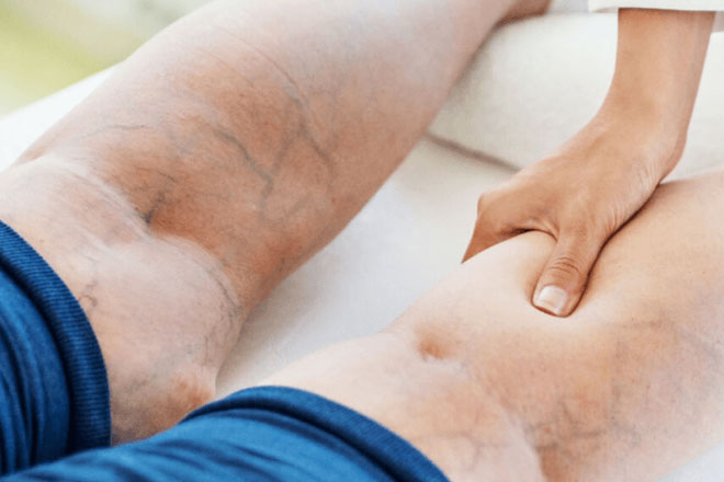 varicose_veins-therapy