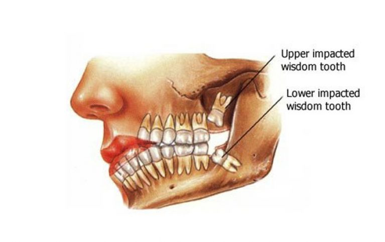 dental_image